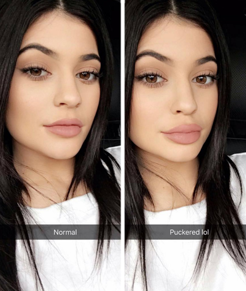 hyaluronic acid lip injections cost