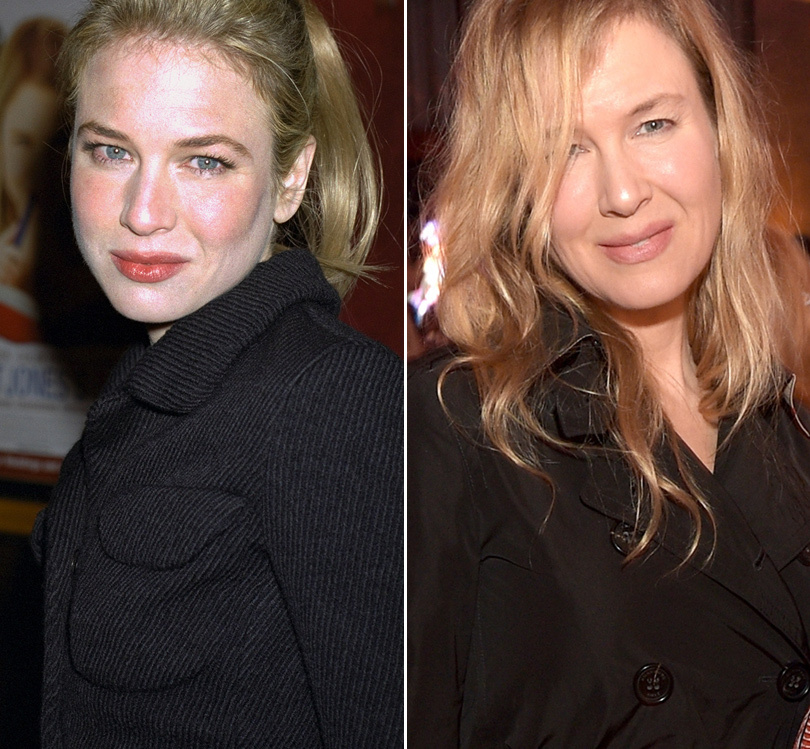There's a War Erupting Over Renee Zellweger's Face -- And Rose McGowan Just Went OFF!