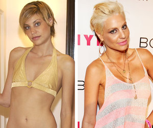 "Lisa D'Amato Spills ""ANTM"" Secrets, Says Tyra Banks Likes Keeping Contestants ""Down"""