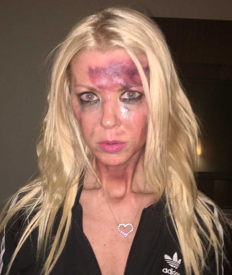 Tara Reid Appears Bruised and Battered on Instagram
