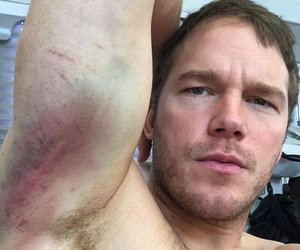 Chris Pratt Makes Even Nasty Bruises Look Really Hot (Photos)
