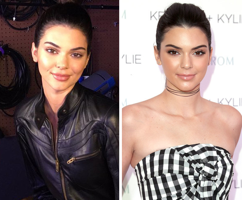 Kendall Jenner Fires Back Over Pesky 'Facial Reconstruction,' Lip Injection Reports